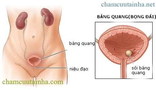 Che-do-an-uong-cho-nguoi-soi-bang-quang