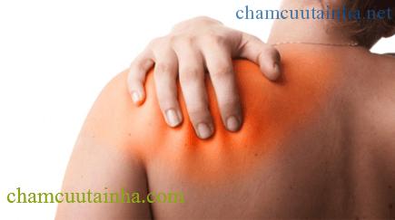 Điều trị bệnh viêm quanh khớp vai bằng điện mãng châm