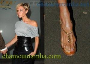Mẹo biến bàn chân to bè biến dạng vì đi giày cao gót hồi phục như ban đầu - Ảnh 1.