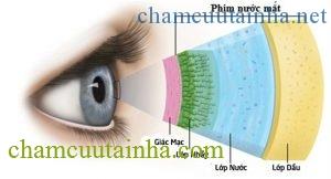 Chuyên gia tư vấn cách chọn kính áp tròng và chuyện cung cấp oxy cho mắt - Ảnh 3.
