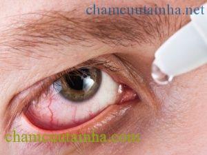 Chuyên gia tư vấn cách chọn kính áp tròng và chuyện cung cấp oxy cho mắt - Ảnh 4.