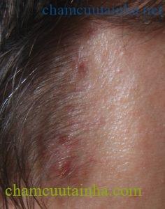 Top thói quen hàng ngày khiến mụn mọc chi chít quanh chân tóc và cách khắc phục hiệu quả - Ảnh 1.