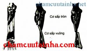 Di lệch của gãy 2 xương cẳng tay