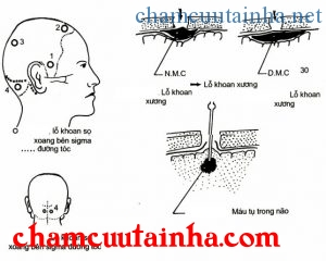 Điều trị chấn thương sọ não