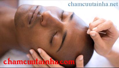 Điều trị hội chứng tiền đình bằng điện mãng châm