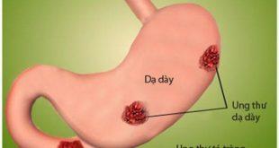 Các phương pháp phòng chống Ung thư dạ dày 1