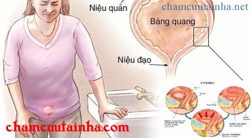 Điều trị bí đái cơ năng bằng điện mãng châm