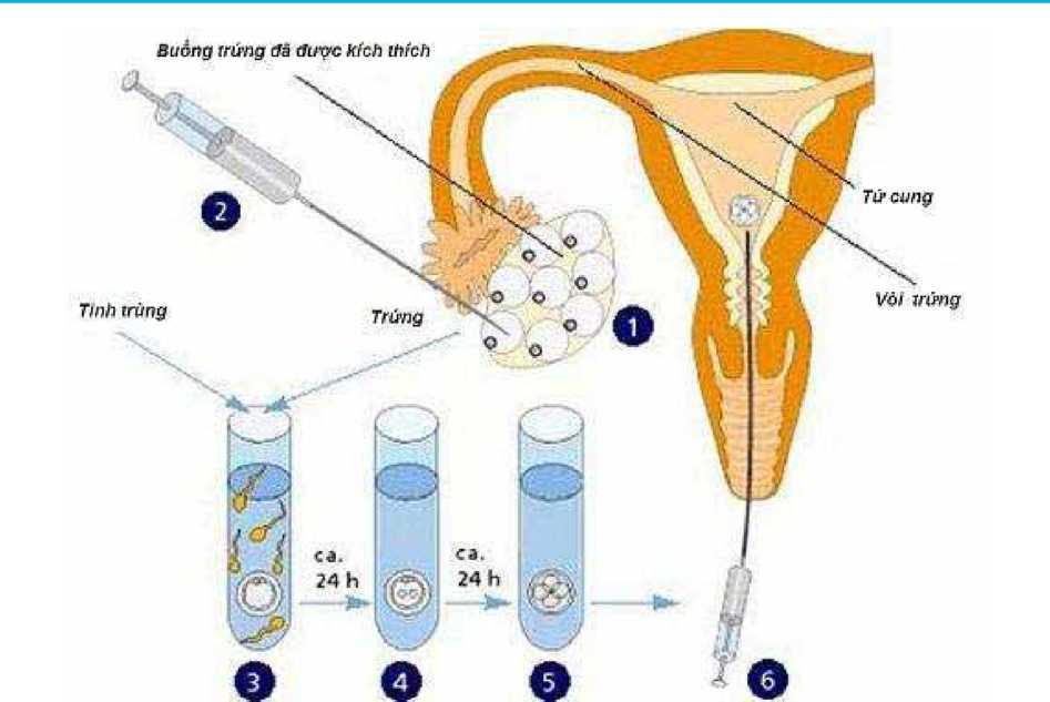 Phương pháp Thụ tinh trong ống nghiệm