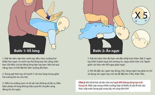 Các bước vỗ lưng cấp cứu khi trẻ bị sặc.