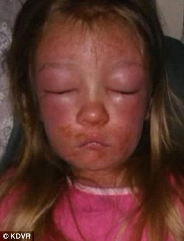 Gương mặt sưng tấy của cô bé (Ảnh: KDVR)