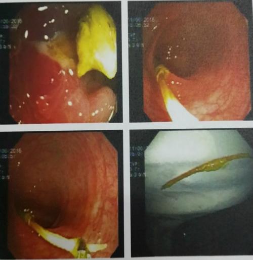 Bệnh nhân hiện được cho dùng kháng sinh và tiếp tục theo dõi. Nếu vết thương không lành sẽ phải mổ vá lỗ thủng đại tràng sigma.