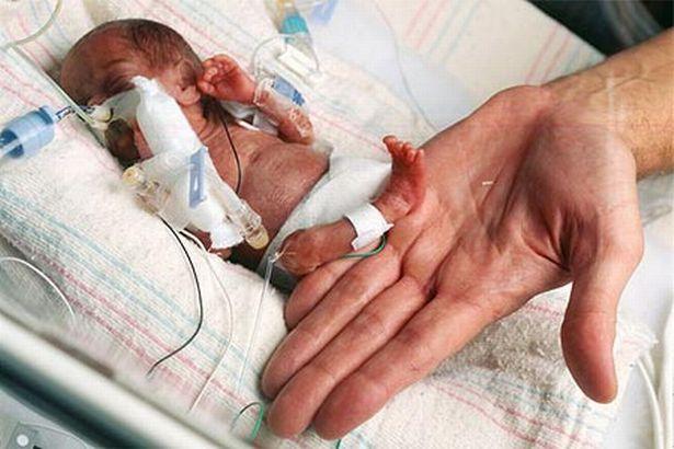 sinh non, bé sinh non, bé sinh non nhỏ nhất thế giới
