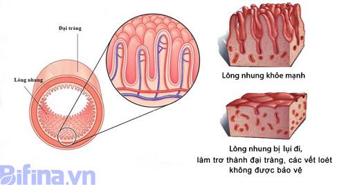 Hệ lông nhung dày đặc trong lòng đại tràng và bị trợ trụi nếu dùng nhiều kháng sinh