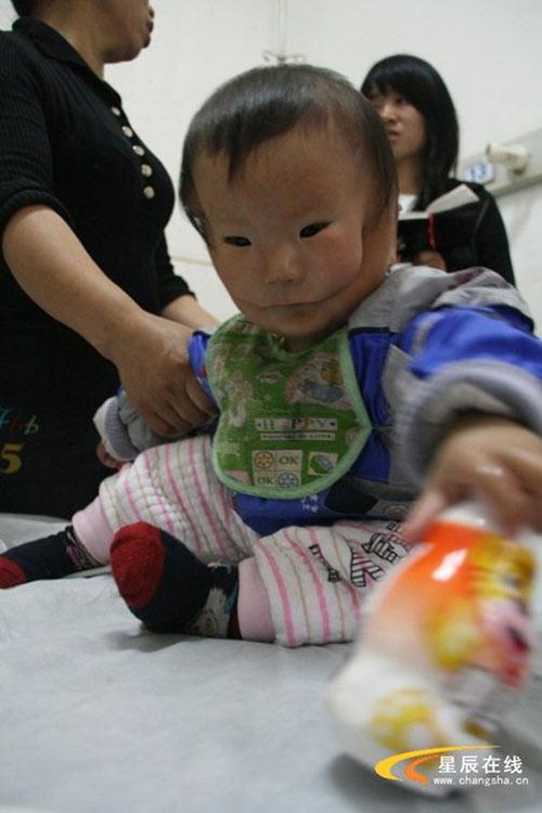 Hội chứng Moebius đã khiến cho khuôn mặt của cậu bé Kangkang bị biến dạng nhìn như cậu bé hai mặt.